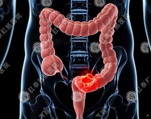 福州直肠炎的症状特征有什么表现